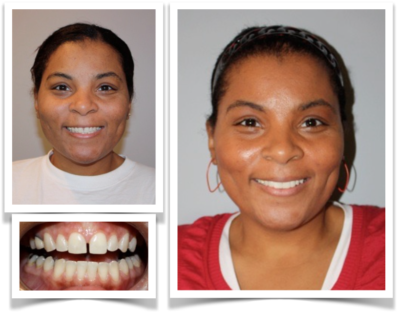 Smile Transformations