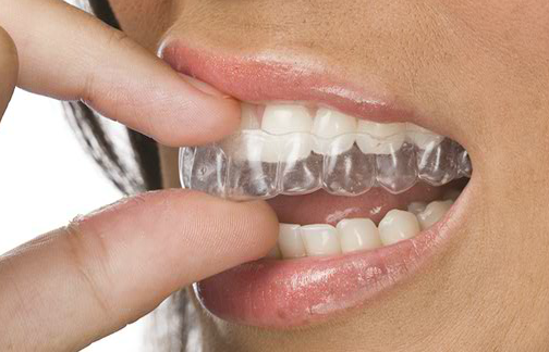 clear braces columbus oh